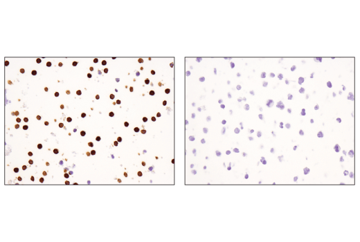 Immunohistochemical analysis of paraffin-embedded purified CD56<sup>+ </sup>human peripheral blood mononuclear cell pellet (left, positive) or Raji cell pellet (right, negative) using CD16 (D1N9L) Rabbit mAb.
