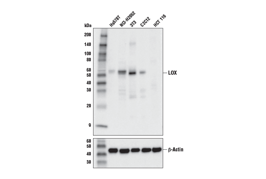 Western blot analysis of extracts from various cell lines using LOX (D8F2K) Rabbit mAb (upper) and β-Actin (D6A8) Rabbit mAb #8457 (lower).
