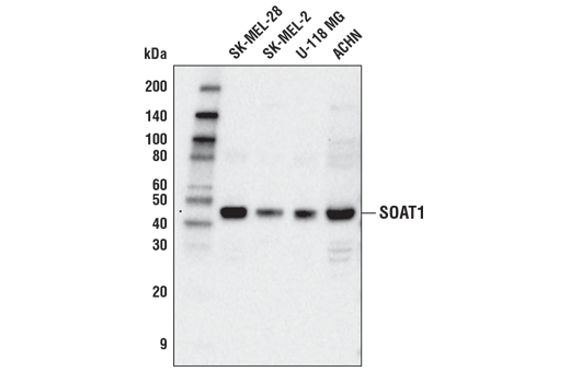 Polyclonal Antibody Cholesterol Binding