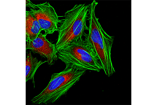 Confocal immunofluorescent analysis of HeLa cells using β-Actin (E4D9X) Mouse mAb (green) and PDI (C81H6) Rabbit mAb #3501 (red). Blue pseudocolor = DRAQ5<sup>®</sup> #4084 (fluorescent DNA dye).