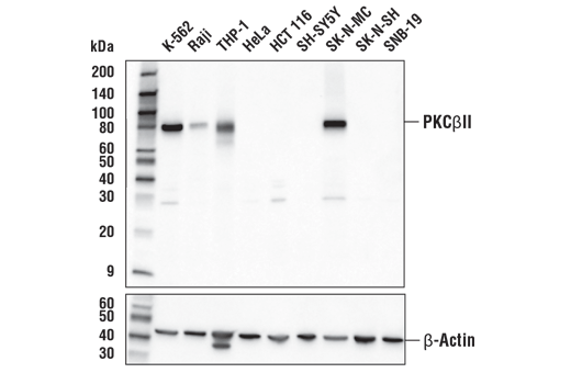 Western blot analysis of extracts from various cell lines using PKCβII (D9S2U) Rabbit mAb (upper) or β-Actin (D6A8) Rabbit mAb #8457 (lower).