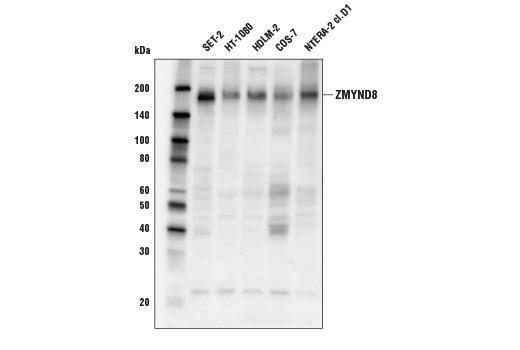 Polyclonal Antibody - ZMYND8 Antibody - Immunoprecipitation, Western Blotting, UniProt ID Q9ULU4, Entrez ID 23613 #97845 - Chromatin Regulation / Nuclear Function