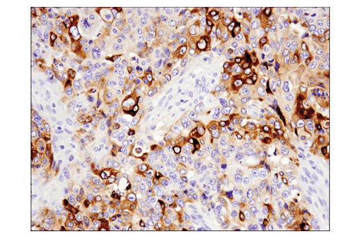 Immunohistochemical analysis of paraffin-embedded human serous papillary carcinoma of the ovary using YKL-40 (E2L1M) Rabbit mAb.
