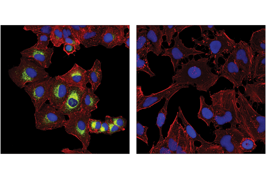 Confocal immunofluorescent analysis of A549 cells (left, positive) and HeLa cells (right, negative) using MUC5AC (E3O9I) Rabbit mAb (green) and β-Actin (8H10D10) Mouse mAb #3700 (red). Blue pseudocolor = DRAQ5<sup>®</sup> #4084 (fluorescent DNA dye).