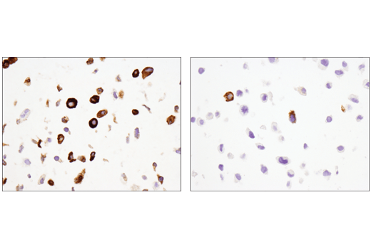 Immunohistochemical analysis of paraffin-embedded A549 cell pellet (left, high-expressing) or HeLa cell pellet (right, low-expressing) using MUC5AC (E3O9I) XP<sup>®</sup> Rabbit mAb.