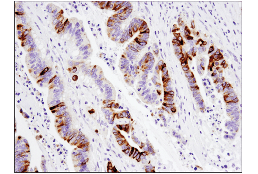 Immunohistochemical analysis of paraffin-embedded human colon carcinoma using MUC5AC (E3O9I) XP<sup>®</sup> Rabbit mAb.