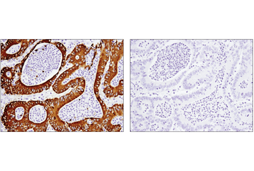 Immunohistochemical analysis of paraffin-embedded human colon carcinoma using MUC5AC (E3O9I) XP<sup>®</sup> Rabbit mAb in the presence of control peptide (left) or antigen-specific peptide (right).