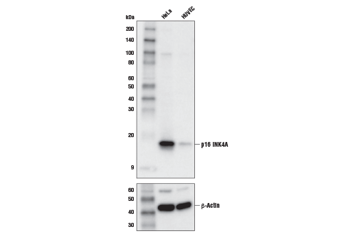 Western blot analysis of extracts from HeLa and HUVEC cells using p16 INK4A (D3W8G) Rabbit mAb (upper) or β-Actin (D6A8) Rabbit mAb #8457 (lower).