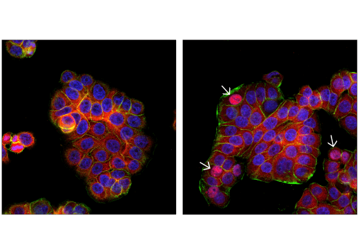 Confocal immunofluorescent analysis of HT-29 cells, mock transfected (left) or transfected with Poly(dA:dT) (2 μg/mL, 6 hr; right), using IRF-3 (D9J5Q) Mouse mAb (Alexa Fluor<sup>®</sup> 647 Conjugate) (red). Actin filaments were labeled with DyLight™ 488 Phalloidin #12935 (green). Blue = DAPI #4083 (fluorescent DNA dye). Note the nuclear translocation of IRF-3 in a subset of cells (arrows).