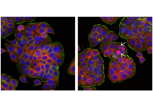 Confocal immunofluorescent analysis of HT-29 cells, mock transfected (left) or transfected with Poly(dA:dT) (2 μg/mL, 6 hr; right), using IRF-3 (D9J5Q) Mouse mAb (Alexa Fluor<sup>®</sup> 555 Conjugate) (red). Actin filaments were labeled with DyLight™ 650 Phalloidin #12956 (green pseudocolor). Blue pseudocolor = DAPI #4083 (fluorescent DNA dye). Note the nuclear translocation of IRF-3 in a subset of cells (arrows).