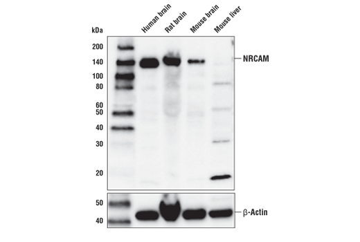 Western blot analysis of human brain, rat brain, mouse brain, and mouse liver lysates using NRCAM antibody. β-actin (D6A8) Rabbit mAb #8457 was used as a loading control.