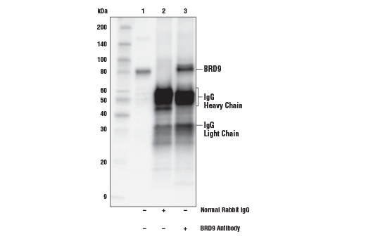Immunoprecipitation of BRD9 from HDLM-2 cell extracts. Lane 1 is 10% input, lane 2 is Normal Rabbit IgG #2729, and lane 3 is BRD9 Antibody. Western blot analysis was performed using BRD9 Antibody.