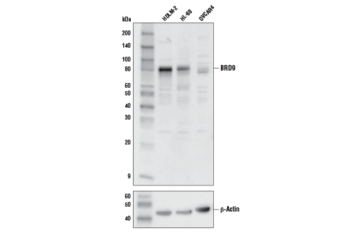 Polyclonal Antibody - BRD9 Antibody - Immunoprecipitation, Western Blotting, UniProt ID Q9H8M2, Entrez ID 65980 #71232 - Chromatin Regulation / Nuclear Function