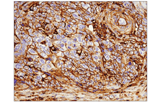 Immunohistochemical analysis of paraffin-embedded human serous papillary carcinoma of the ovary using CD44 (E7K2Y) XP<sup>®</sup> Rabbit mAb.