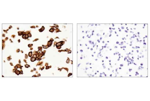 Immunohistochemical analysis of paraffin-embedded PANC-1 cell pellet (left, positive) or AN3 CA cell pellet (right, negative) using CD44 (E7K2Y) XP<sup>®</sup> Rabbit mAb.