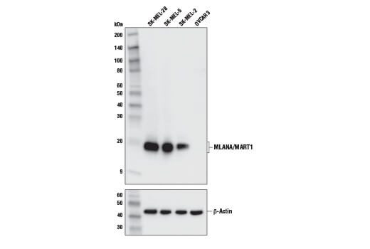 Western blot analysis of extracts from various cell lines using MLANA/MART1 (E9Q4O) XP<sup>® </sup>Rabbit mAb (upper) and β-Actin (D6A8) Rabbit mAb #8457 (lower). Expression in OVCAR3 is negative or low, as expected.