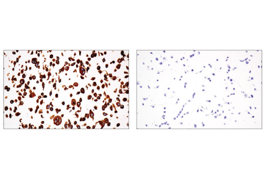 Immunohistochemical analysis of paraffin-embedded SK-MEL-28 cell pellet (left, positive) or OVCAR3 cell pellet (right, negative) using MLANA/MART-1 (E9Q4O) XP<sup>®</sup> Rabbit mAb.