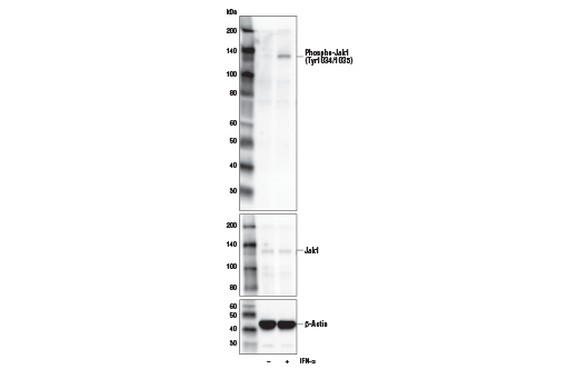 Western blot analysis of extracts from U266 cells, untreated (-) or treated with IFNα (50ng/ml, 15 min; +), using Phospho-Jak1 (Try1034/1035)/Jak2 (Tyr1007/1008) (E9Y7V) Mouse mAb (upper), Jak1 (6G4) Rabbit mAb #3344 (middle), or β-Actin (D6A8) Rabbit mAb #8457 (lower).