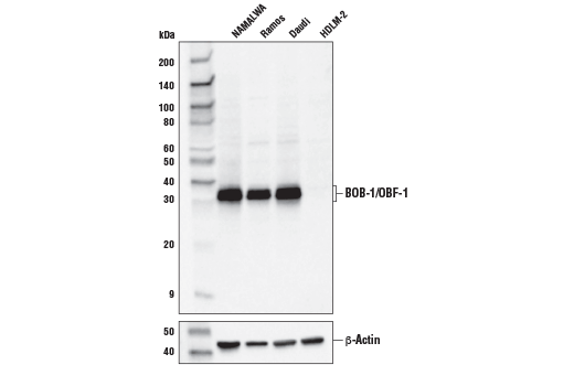 Western blot analysis of extracts from various cell lines using BOB-1/OBF-1 Antibody (upper) and β-Actin (D6A8) Rabbit mAb #8457 (lower). As expected, BOB-1/OBF-1 protein is not detected in HDLM-2 cells.