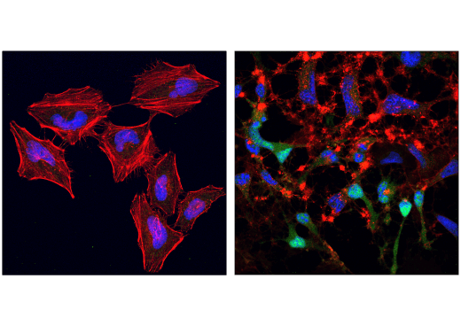 Confocal immunofluorescent analysis of HeLa cells, untreated (left) or treated with Staurosporine #9953 (1 μM, 3 hr; right), using Cleaved Caspase-9 (Asp330) (E5Z7N) Rabbit mAb (green). Actin filaments were labeled with DyLight™ 554 Phalloidin #13054 (red). Blue pseudocolor = DRAQ5<sup>®</sup> #4084 (fluorescent DNA dye).