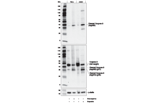 Western blot analysis of extracts from HeLa and Jurkat cells, untreated (-) or treated with Staurosporine #9953 (1 μM, 3 hr; +) or Etoposide #2200 (25 μM, overnight; +), using Cleaved Caspase-9 (Asp330) (E5Z7N) Rabbit mAb (upper), Caspase-9 (C9) Mouse mAb #9508 (middle), or β-Actin (D6A8) Rabbit mAb #8457 (lower).