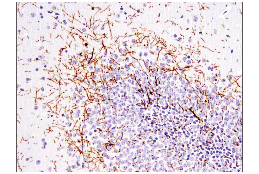 Image 12: Demyelinating Disease Targets Antibody Sampler Kit
