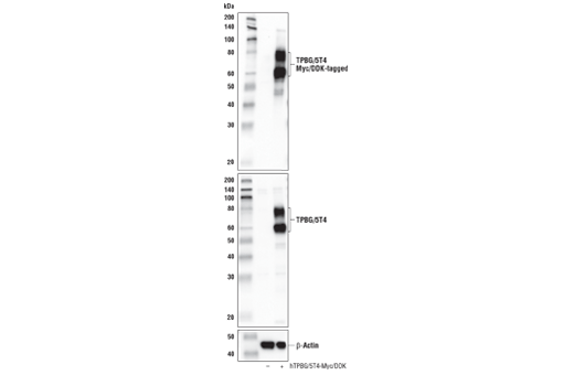Western blot analysis of extracts from 293T cells, mock transfected (-) or transfected with a construct expressing Myc/DDK-tagged full-length human TPBG/5T4 protein (hTPBG/5T4-Myc/DDK; +), using TPBG/5T4 (E4T8Q) Rabbit mAb (upper), DYKDDDDK Tag Antibody #2368 (middle), and β-Actin (D6A8) Rabbit mAb #8457 (lower).