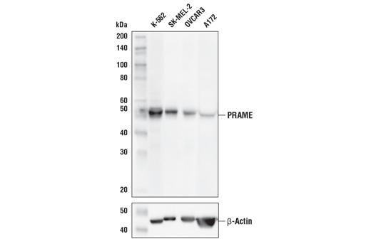 Monoclonal Antibody - PRAME (E7I1B) Rabbit mAb, UniProt ID P78395, Entrez ID 23532 #56426 - #56426