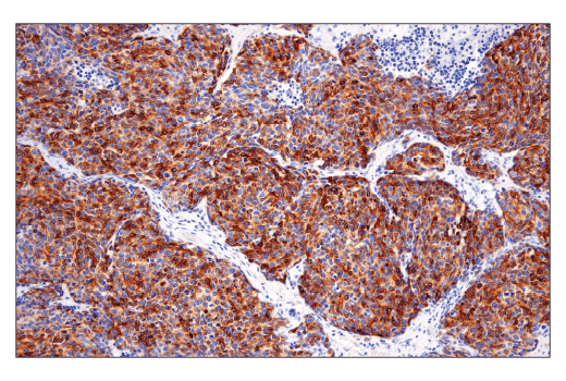 Immunohistochemical analysis of paraffin-embedded human small cell lung carcinoma using DLL3 (E3J5R) Rabbit mAb.