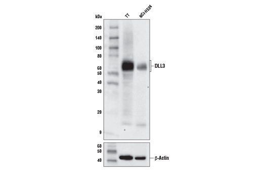 Western blot analysis of extracts from TT and NCI-H524 cells using DLL3 (E3J5R) Rabbit mAb (upper) and β-actin (D6A8) Rabbit mAb #8457 (lower).