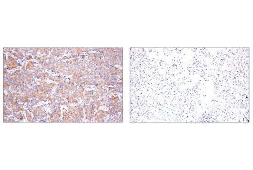 Immunohistochemical analysis of paraffin-embedded human small cell lung carcinoma (left, positive) or non-small cell lung carcinoma (right, negative) using DLL3 (E3J5R) Rabbit mAb.