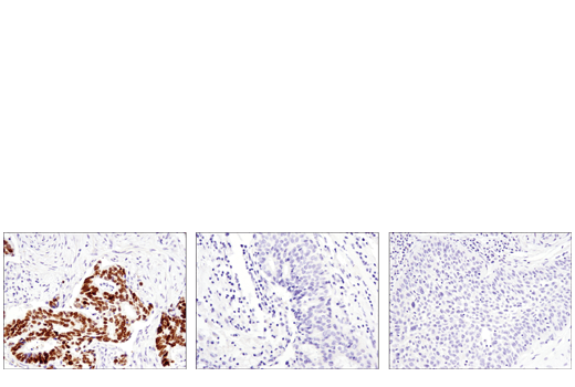 Immunohistochemical analysis of paraffin-embedded human colon carcinoma (left, positive), breast carcinoma (middle, negative) and lung carcinoma (right, negative) using SATB2 (E8R8H) Rabbit mAb.