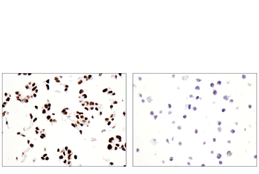 Immunohistochemical analysis of paraffin-embedded DLD-1 cell pellet (left, positive) or KARPAS-299 cell pellet (right, negative) using SATB2 (E8R8H) Rabbit mAb.