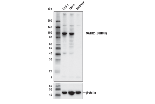 Western blot analysis of extracts from DLD-1, THP-1, and SH-SY5Y cells using SATB2 (E8R8H) Rabbit mAb (upper) and β-actin (D6A8) Rabbit mAb #8457 (lower).