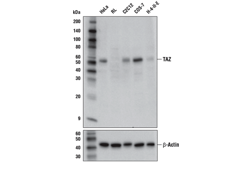 Western blot analysis of extracts from various cell lines using TAZ (E5P2N) Mouse mAb (upper) and β-Actin (D6A8) Rabbit mAb #8457 (lower). TAZ expression is undetectable in RL-7 extracts, as predicted from published gene expression databases.