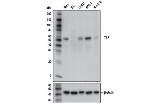 Monoclonal Antibody Immunoprecipitation Glomerulus Development