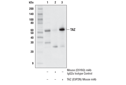 Immunoprecipitation of TAZ from HeLa cell extracts. Lane 1 is 10% input, lane 2 is Mouse (E5Y6Q) mAb IgG2a Isotype Control #61656, and lane 3 is TAZ (E5P2N) Mouse mAb. Western blot analysis was performed using TAZ (D3I6D) Rabbit mAb #70148. Anti-rabbit IgG, HRP-linked Antibody #7074 was used as the secondary antibody.