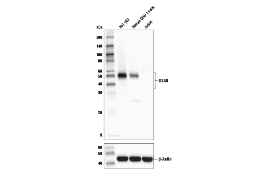 Western blot analysis of extracts from HuT 102, human CD4<sup>+</sup> T, and Jurkat cells using OX40 (ACT35) Mouse mAb (upper) and β-actin (D6A8) Rabbit mAb #8457 (lower). CD4<sup>+</sup> T cells were purified from blood, and stimulated for 9 days using beads coated with CD3 and CD28 antibodies in the presence of Interleukin-2 (hIL-2) #8907 (20 ng/ml).
