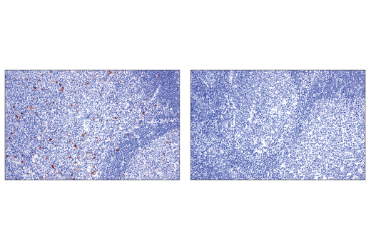 Immunohistochemical analysis of paraffin-embedded human tonsil using OX40 (ACT35) Mouse mAb (left) compared to concentration matched Mouse (G3A1) IgG1 Isotype Control #5415 (right).
