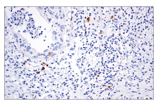 Immunohistochemical analysis of paraffin-embedded human squamous cell carcinoma of the lung using OX40 (ACT35) Mouse mAb.