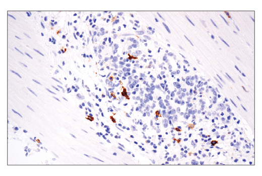 Immunohistochemical analysis of paraffin-embedded human gastric adenocarcinoma using OX40 (ACT35) Mouse mAb performed on the Leica<sup>®</sup> BOND™ Rx.