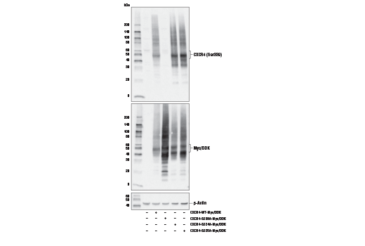 Western blot analysis of extracts from 293T cells, mock transfected (-) or transfected (+) with constructs expressing Myc/DDK-tagged full-length human CXCR4 wild-type protein (CXCR4-WT-Myc/DDK), Myc/DDK-tagged full-length human CXCR4 S339A protein (CXCR4-S339A-Myc/DDK), Myc/DDK-tagged full-length human CXCR4 S324A protein (CXCR4-S324A-Myc/DDK), or Myc/DDK-tagged full-length human CXCR4 S325A protein (CXCR4-S325A-Myc/DDK), using Phospho-CXCR4 (Ser339) Antibody (upper), Myc-Tag (71D10) Rabbit mAb #2278 (middle), and β-actin (D6A8) Rabbit mAb #8457 (lower).