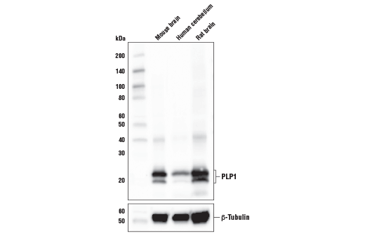 Western blot analysis of extracts from mouse brain, human cerebellum and rat brain tissue using PLP1 antibody (upper) and β-tubulin (D2N5G) Rabbit mAb #15115 (lower). The upper band corresponds to the full-length PLP1 while the lower band is an alternative splice form of PLP1 known as DM20.