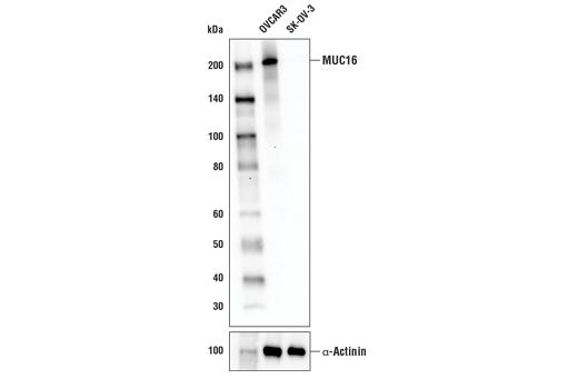 Polyclonal Antibody - MUC16 Antibody - Western Blotting, UniProt ID Q8WXI7, Entrez ID 94025 #29623 - #29623