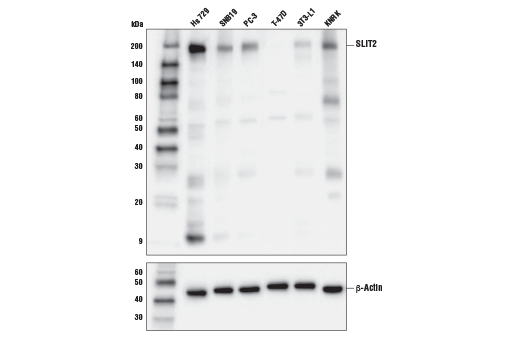 Monoclonal Antibody Western Blotting Chemorepellent Activity