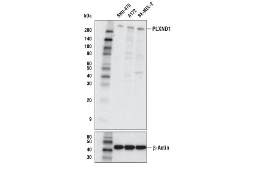 Polyclonal Antibody - PLXND1 Antibody - Western Blotting, UniProt ID Q9Y4D7, Entrez ID 23129 #92470 - #92470