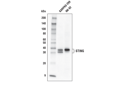 Western blot analysis of extracts from KARPAS-299 and NK-92 cells using STING (D2P2F) Rabbit mAb (Biotinylated). KARPAS cell line source: Dr. Abraham Karpas at the University of Cambridge.