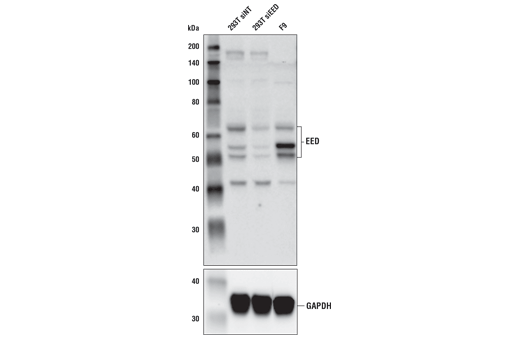 Image 6: Polycomb Group 2 (PRC2) Antibody Sampler Kit