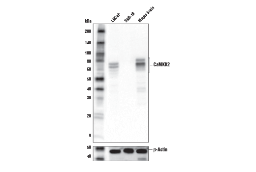 Monoclonal Antibody Calmodulin-Dependent Protein Kinase Activity