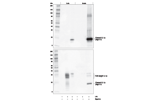 Western blot analysis of cell extracts and media from mouse bone marrow derived macrophages (mBMDM), untreated (-), or treated (+) with combinations of LPS #14011 (50 ng/ml, 4 hr) followed by nigericin (15 μM, 45 min) using Cleaved-IL-1β (Asp117) (D7V2A) Rabbit mAb (Mouse Specific) (upper) or total IL-1β (D3H1Z) Rabbit mAb (Mouse Specific) #12507 (lower).